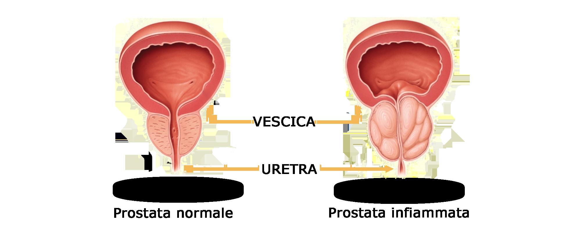 Problemi prostata
